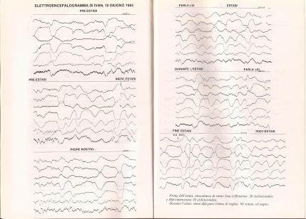 01_Medjugorje_Studi_elettrocardiogramma_Ivan_10_06_1984