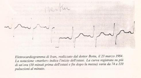 04_Medjugorje_Studi_elettrocardiogramma_Ivan_23_03_1984