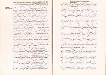 05_Medjugorje_Studi_elettrocardiogramma_Marja_06_10_1984