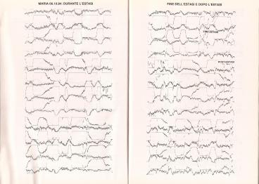 05_Medjugorje_Studi_elettrocardiogramma_Marja_06_10_1984_02